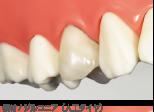 ジルコニアディーバ 臼歯専用・かぶせ物