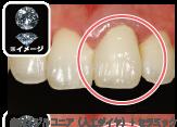 プラチナディーバ 前歯・臼歯専用